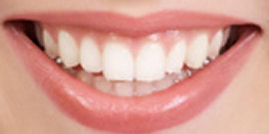 фото карєс зуби